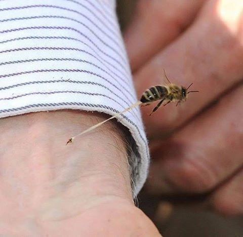 Укус пчелы.jpg